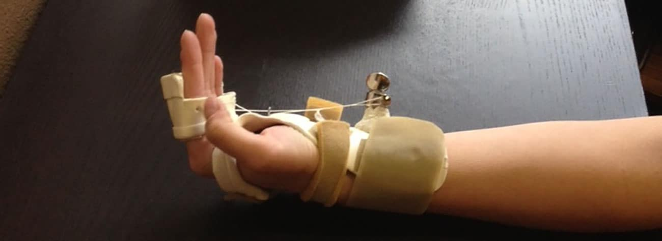 Splint, Physical Therapy, Occupational Therapy